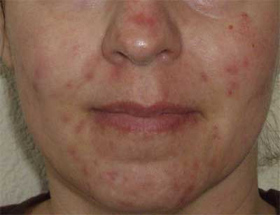 Red marks after acne