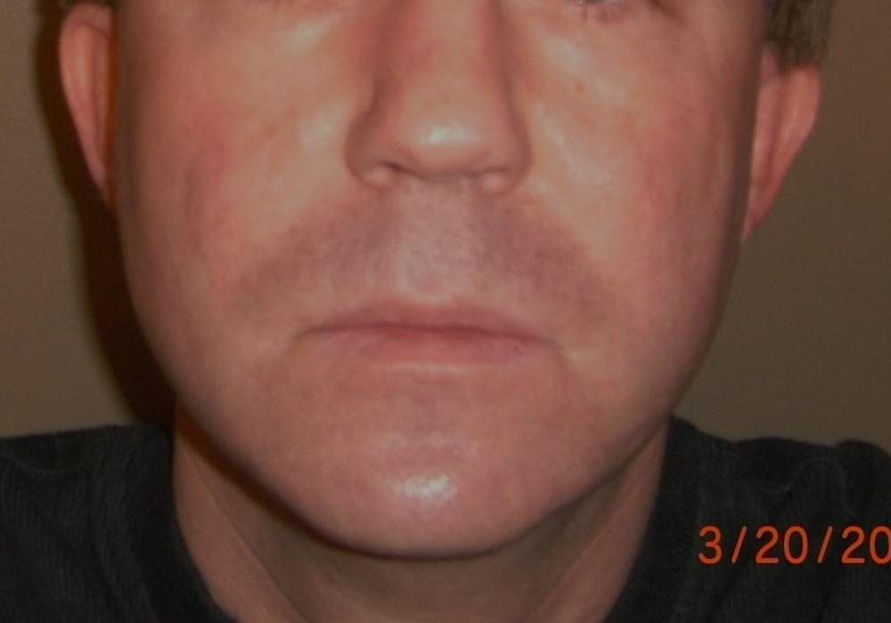 March 20, 2010 Full Face - Final Photo