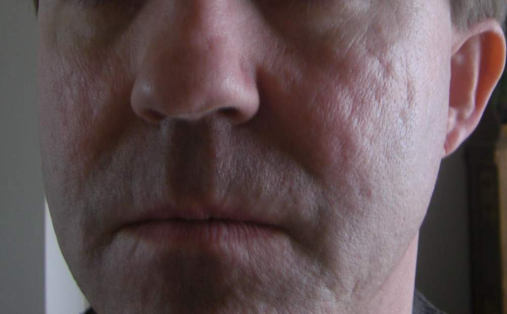 Baseline Photo - Full Face (Pre-Subcision and Laser Photo)