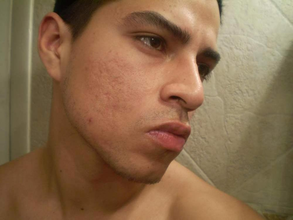 P3240014.JPG - Acne Scars Bad Angles - Pictures & Videos ...