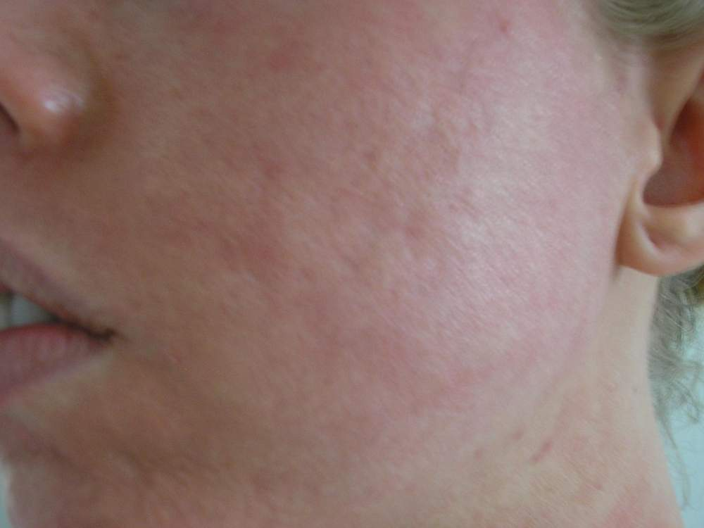 9 days after 4th total fx treatment