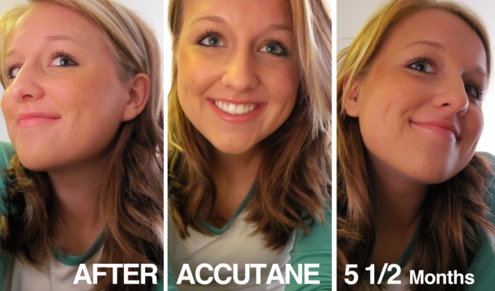 AFTER ACCUTANE!!!!