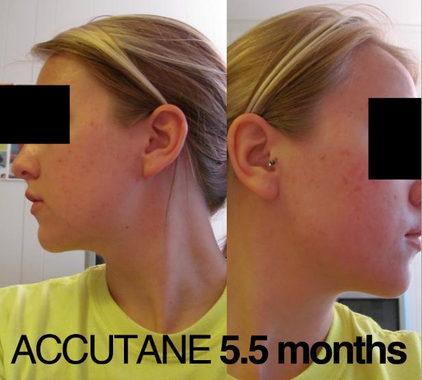 Accutane - 5 1/2 Months I'M DONE!!!!&#33