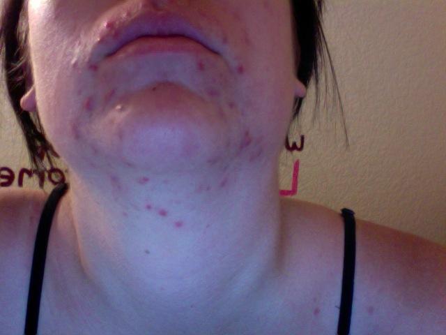 Day 1- Under Chin