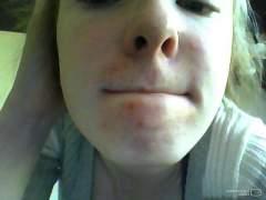 chin acne.jpg