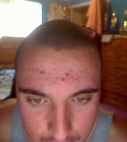 1month on Accutane