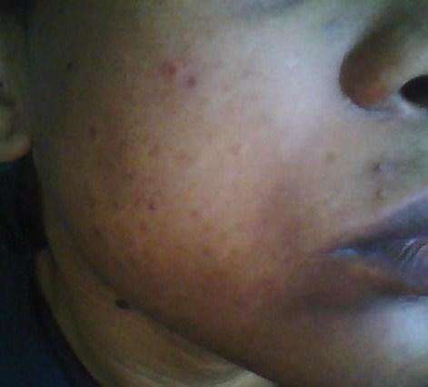 June 2010- Right cheek: More dark spots than acne