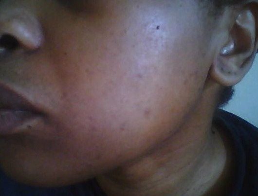 June 2010 - Left cheek: Small pimples but mostly dark spots