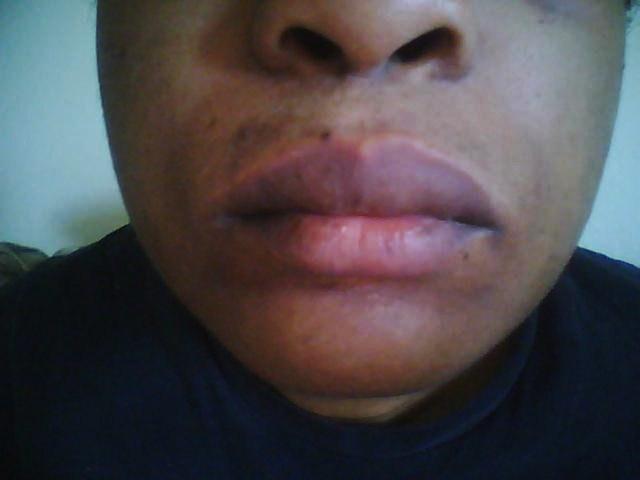 June 2010: Upper lip and Chin: Dark spots/acne
