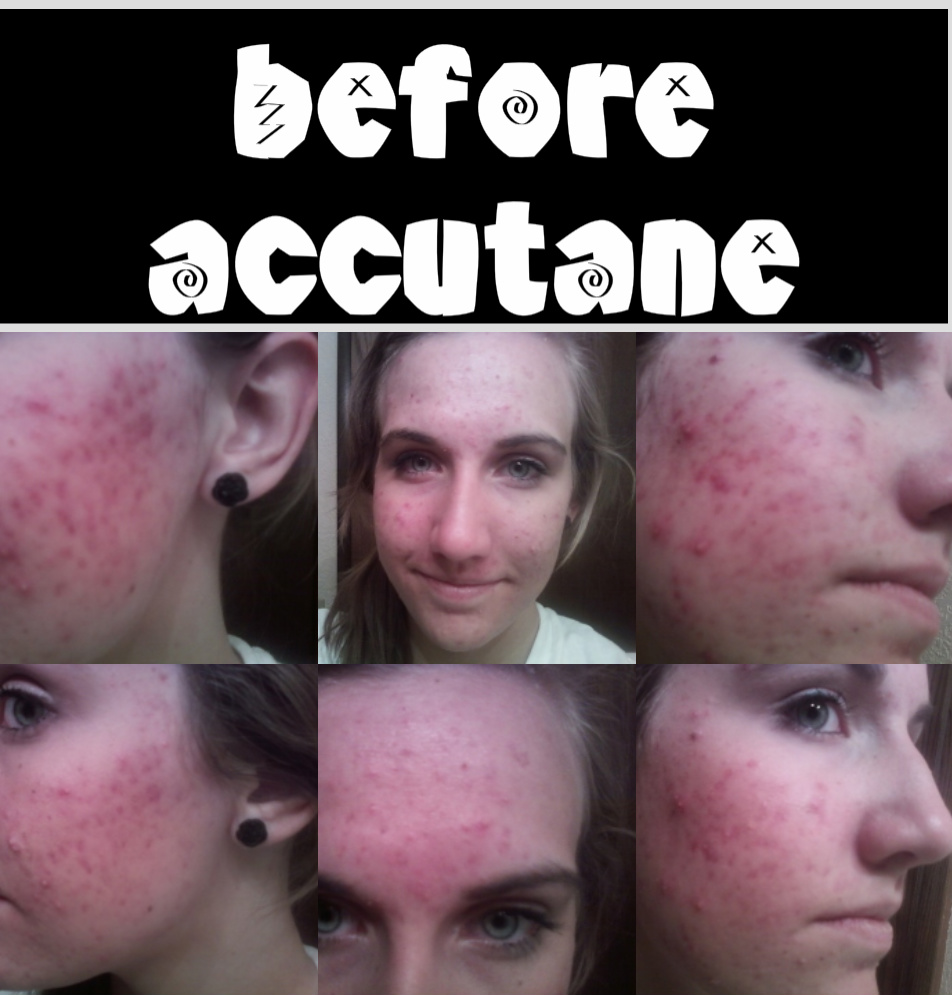 The Accutane Diary