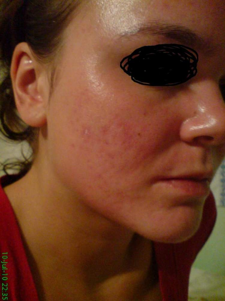 4 months after using accutane