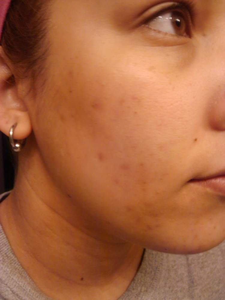 Right side of face before starting Acne.org regimen