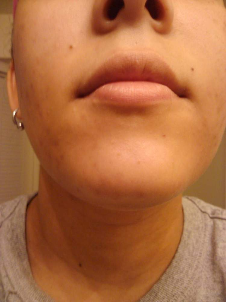 Chin area before starting the Acne.org regimen