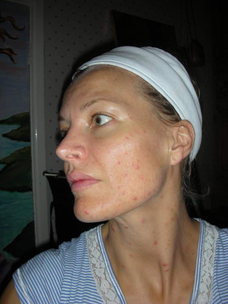 Acne skin to clear skin - thanks to BP treatment