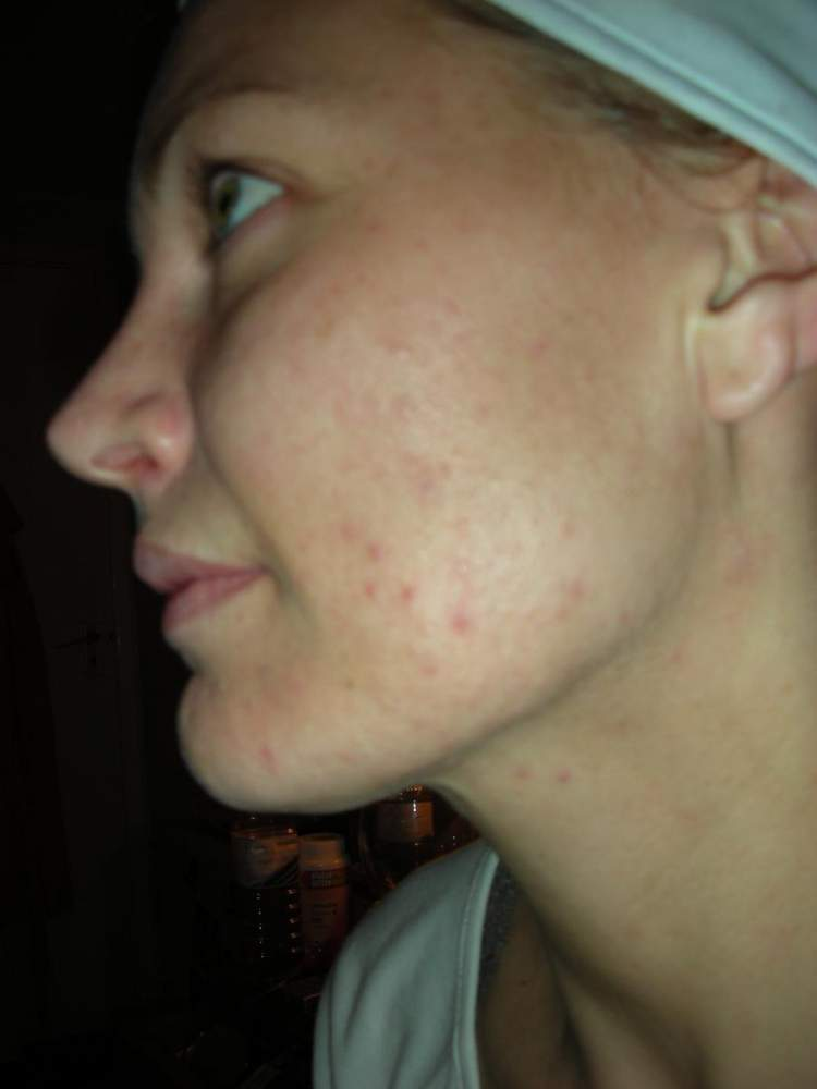 Started using some Benzoyl Peroxide 2.5%