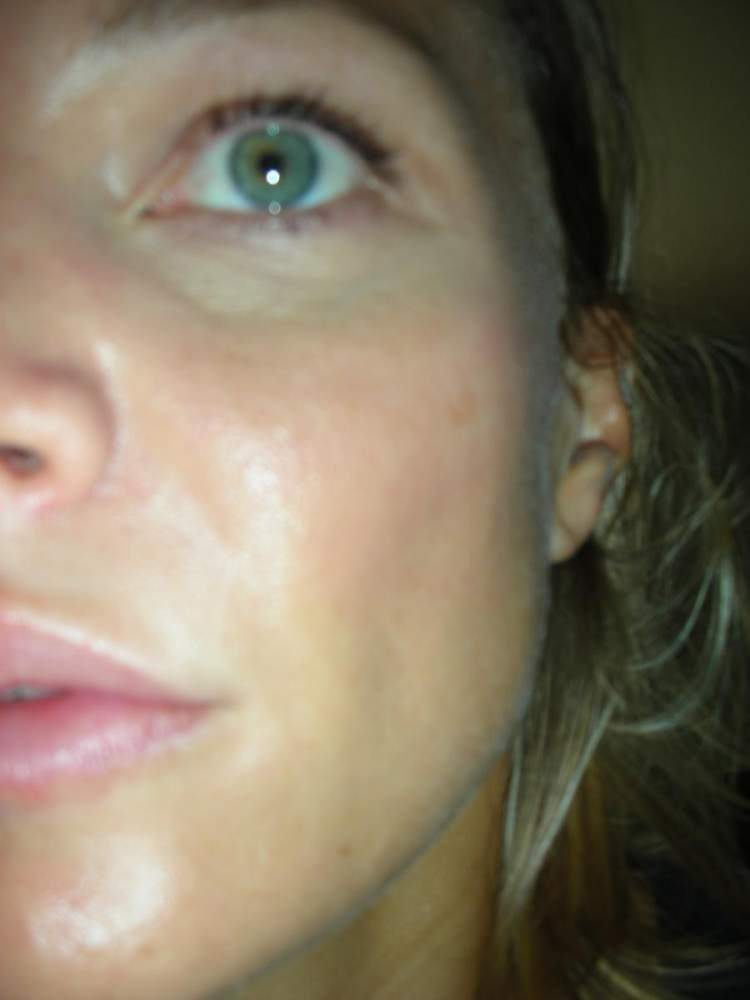 My skin now - August 2010