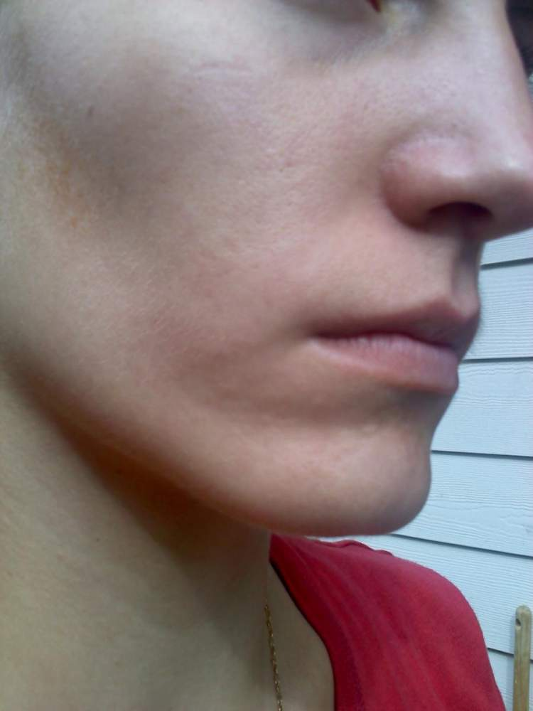 Here's the cheek with acne scars.