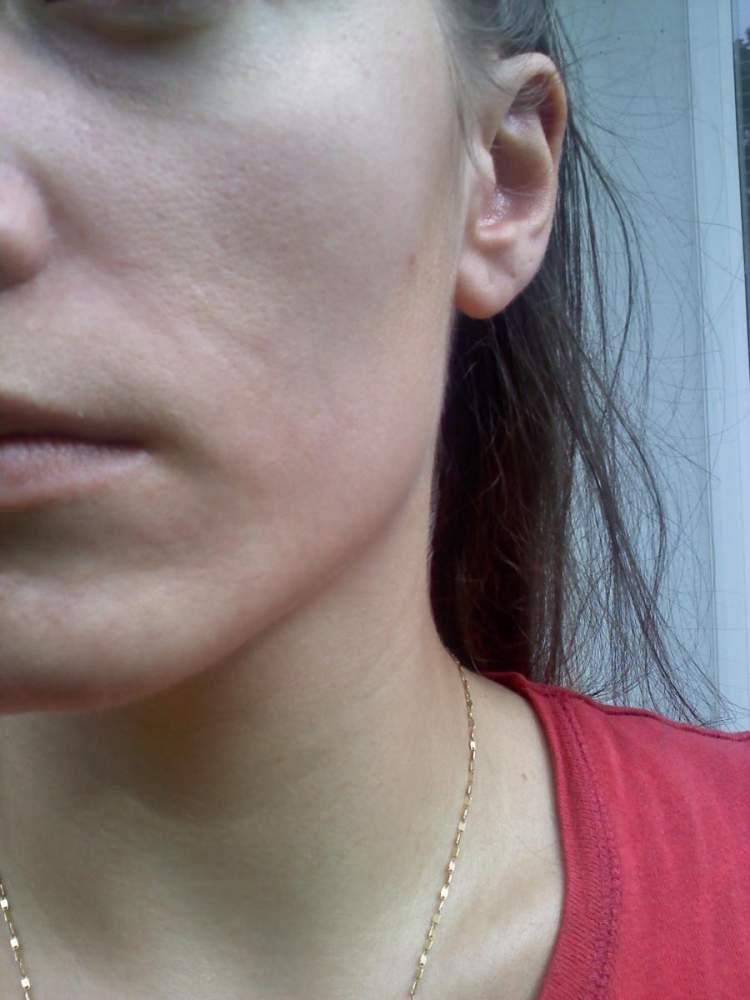 Cyst Scar.jpg