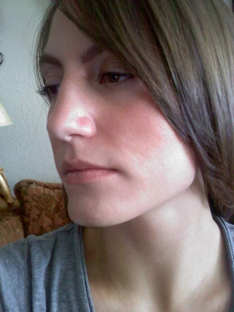 Cyst scar 2.jpg