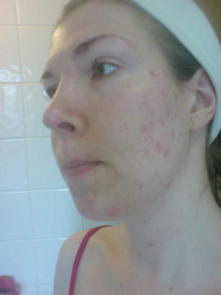 22 Sept 2010 after stopping depo injection 8 weeks ago, &
