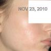 November 23rd, 2010