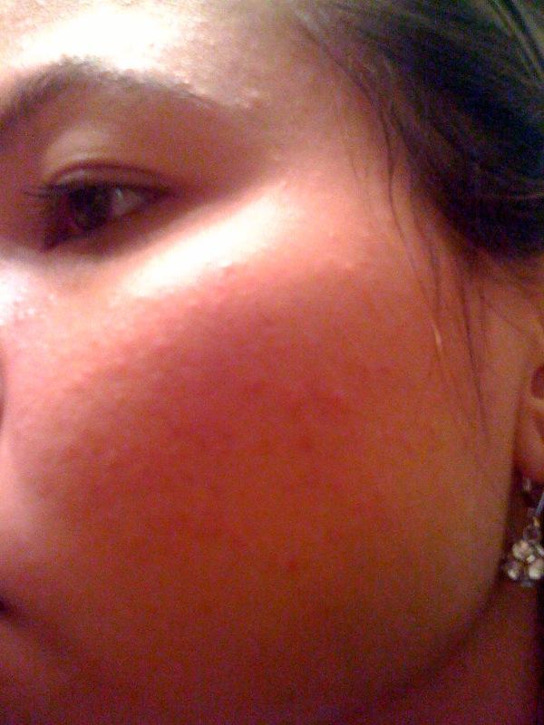 My Skin the 1st Day of Regimen