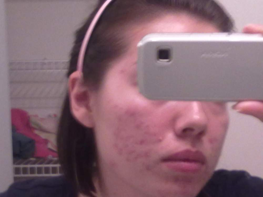 Before (right before my first time using the Regimen process