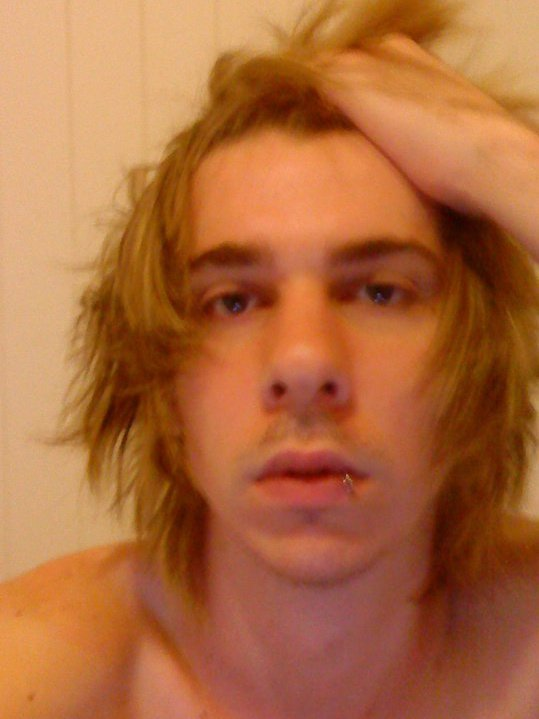 2010 one year after roaccutane