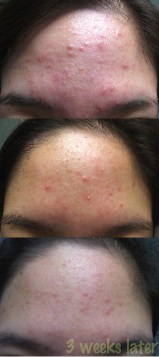 acne.org.jpg
