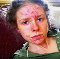 Severe acne -> complete holistic success