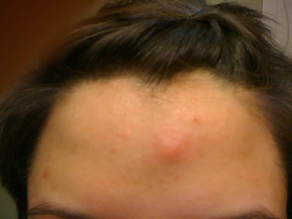 week 2 forehead