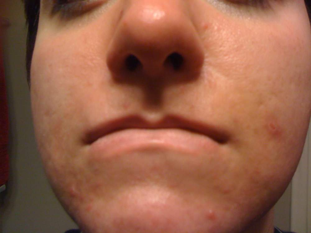 face week one