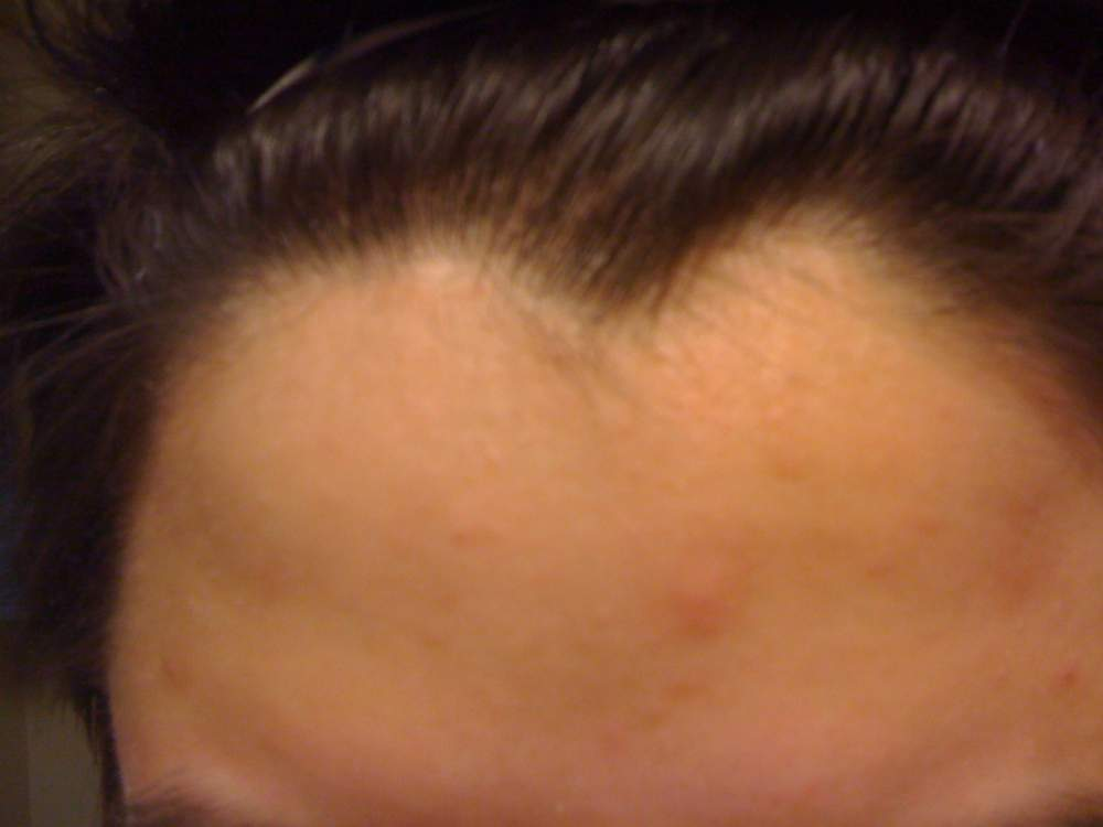 accutane week 3 forehead