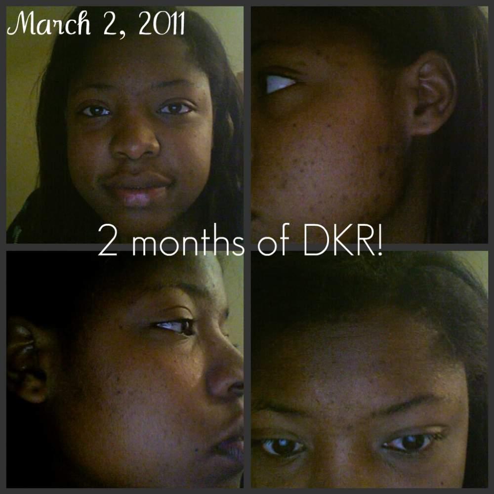 After 2 months of DKR Regimen