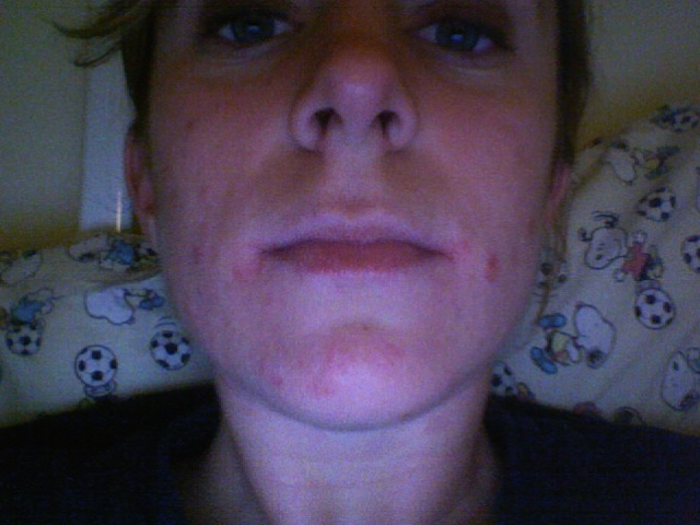 After one month on 60mg/day Claravis