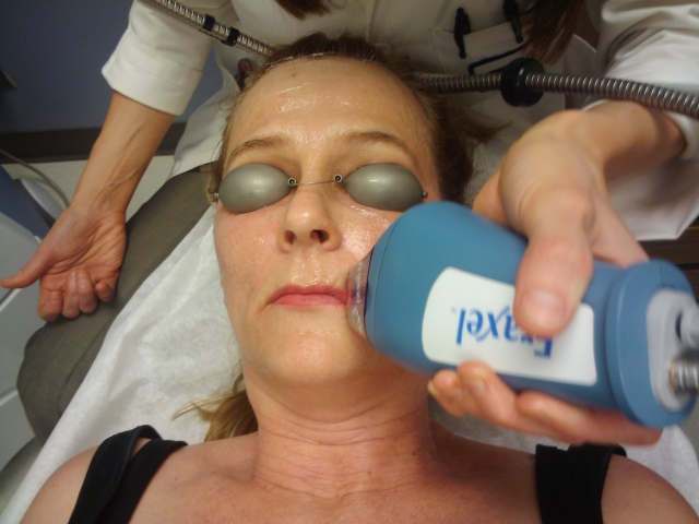 During Fraxel Treatment (First Treatment)