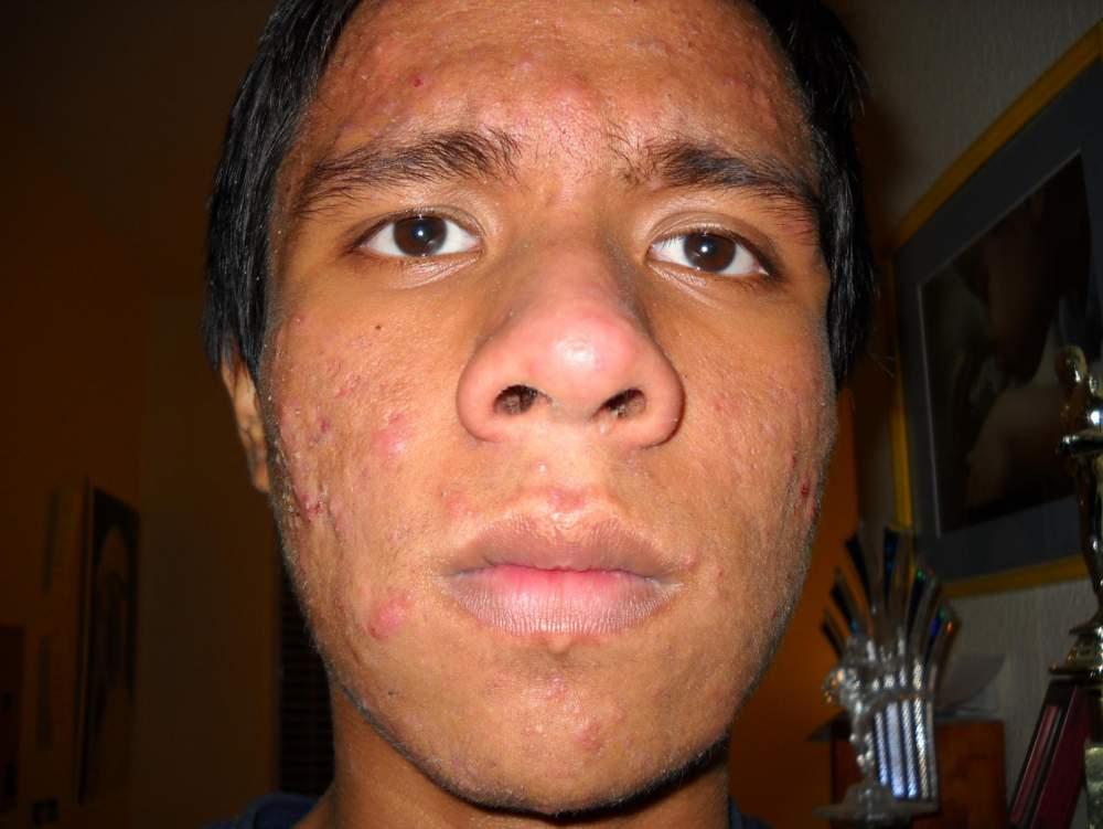 Whole Face