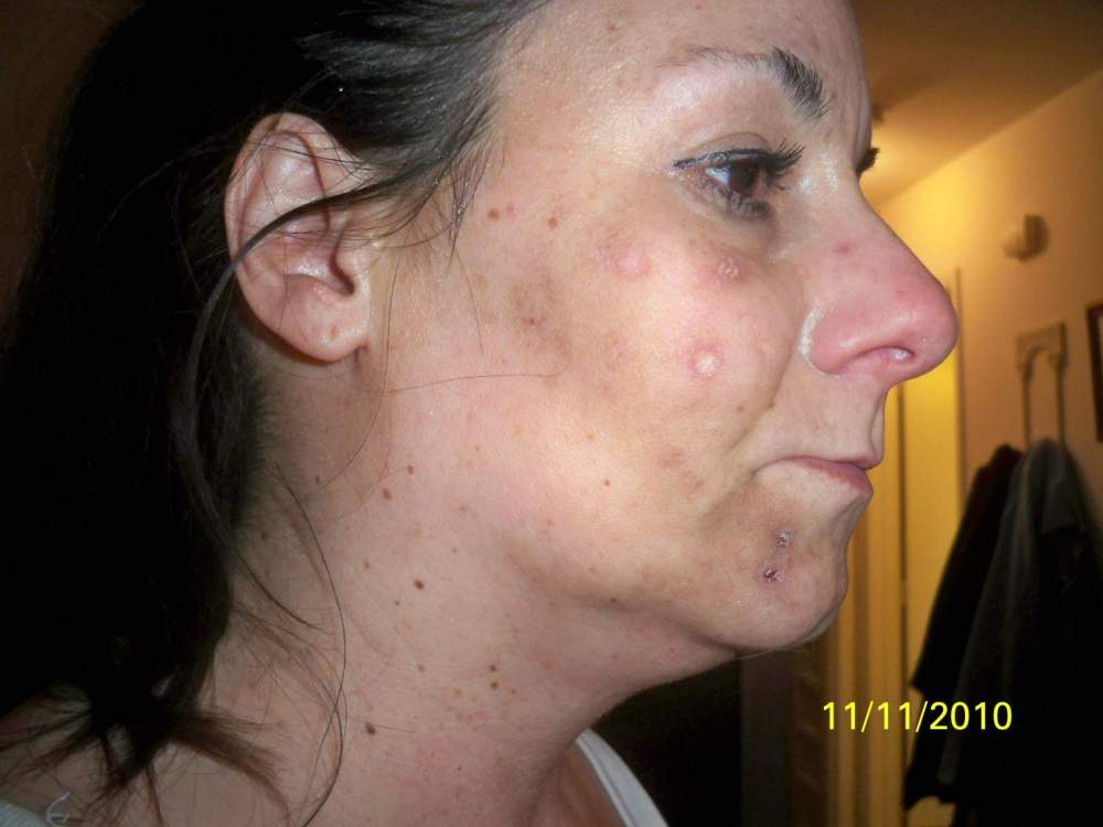 Acne Cystic