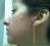 left profile.Day.1.jpg