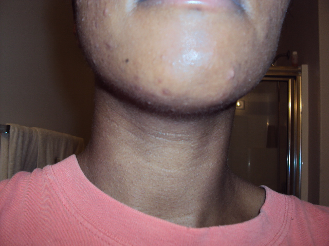 April7,2011(Chin with flash)
