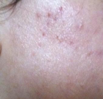 acne regime