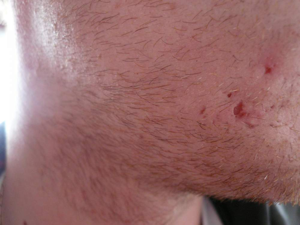 new scar developing very deep pit
