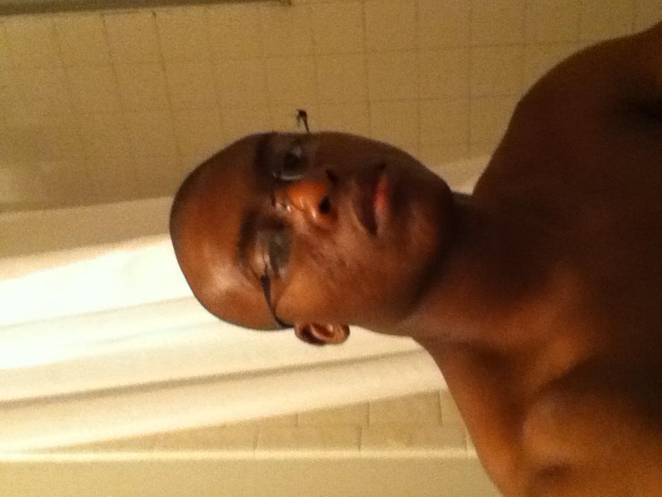 my scars acne