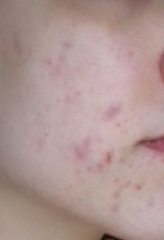 day 1 acne.org.png
