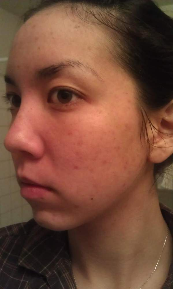 Day 5 No make up (left)