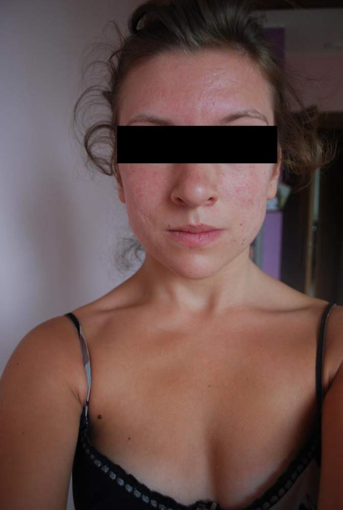2months after accutane