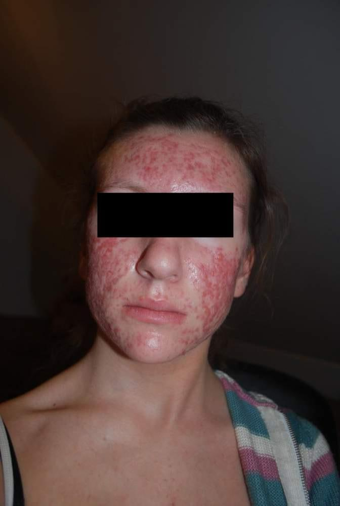beggining with accutane