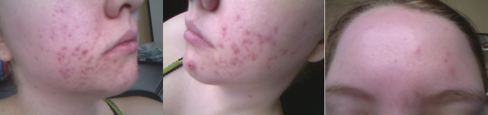 August 9th 2011... cyst on my chin