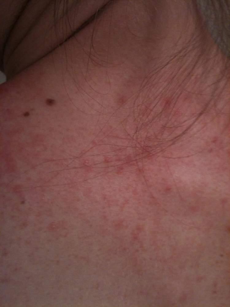 29/08/2011 (close up). Week two, day 11 of retinoid / BP gel