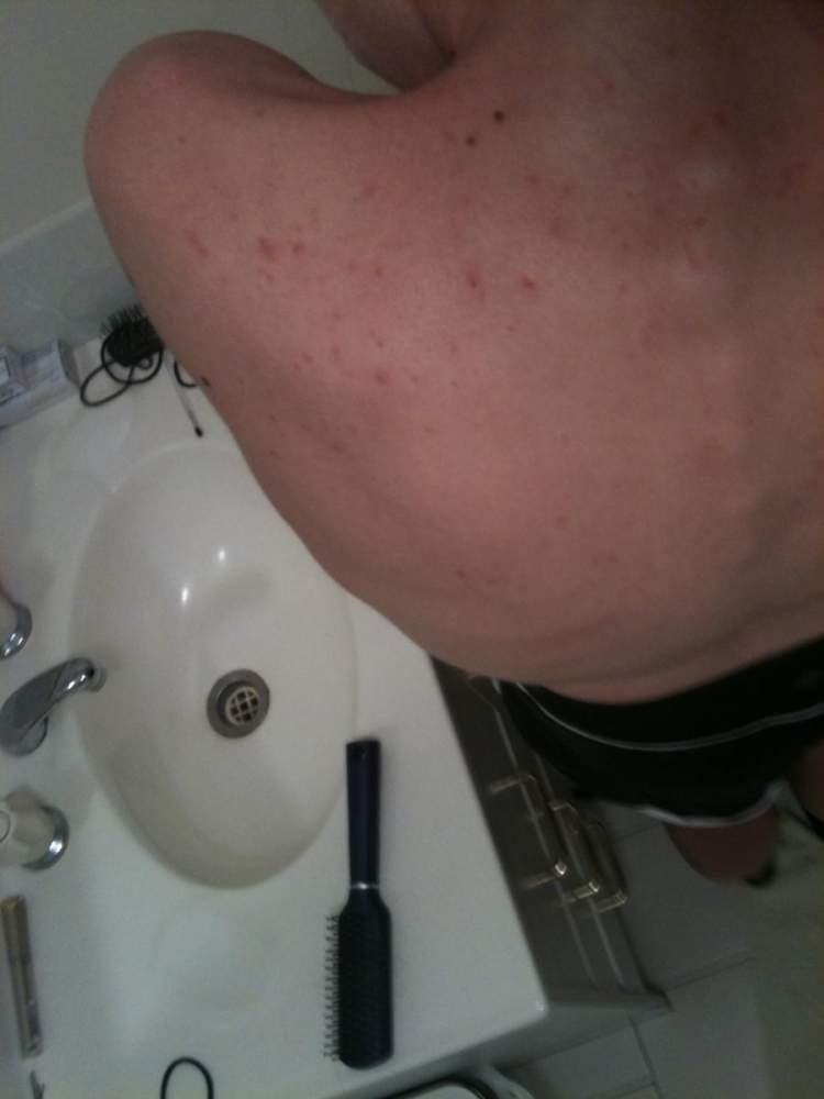 11/09/2011 (Back) Week Four, day 25; Doxy, BP+retinoid gel,